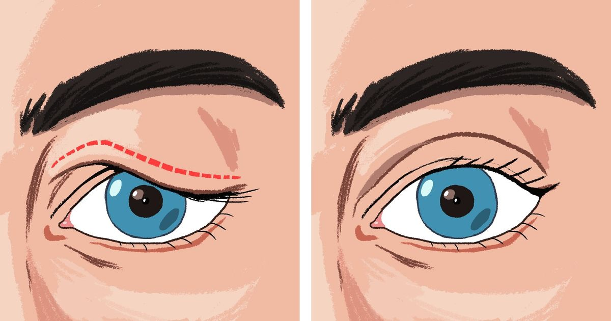 7 tips to get rid of sagging eyelids